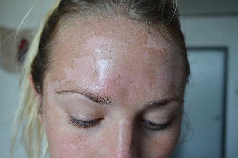Sunscreen advert